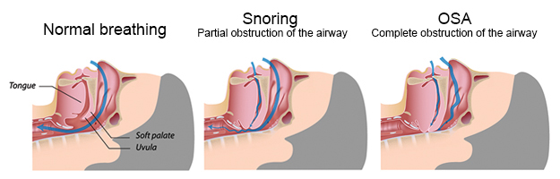 sleep-apnea-21